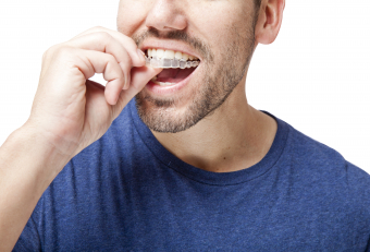 7 Things You Must Know Before Getting Invisalign