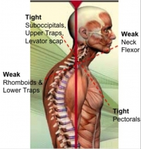 Why Do I Have Neck Pain? Upper Cross Syndrome Explained.