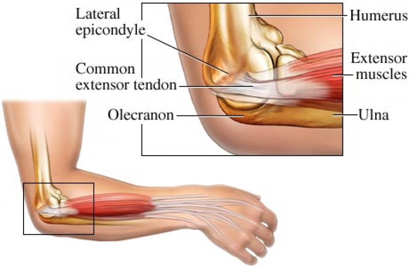 Fast Facts About Tennis Elbow (a.k.a lateral epicondylalgia) - Blog