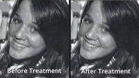 Before & After Photos: Our treatments do make a difference!