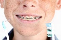 How do I brush my teeth with braces?