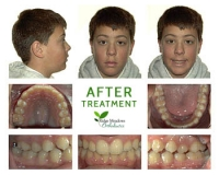 Case Study | Ridge Meadows Orthodontics, Maple Ridge