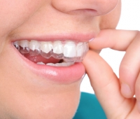 Hey, Teens! No one will know you've got braces with Invisalign!