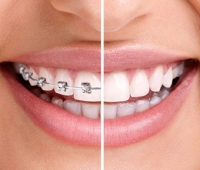 What are Invisalign® Clear Braces?