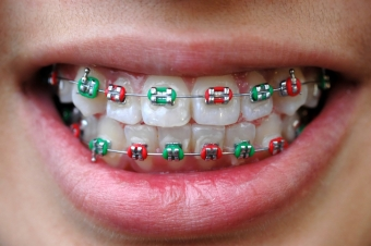 Festive Colours for your Braces