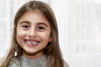 The Importance of Healthy Primary Teeth