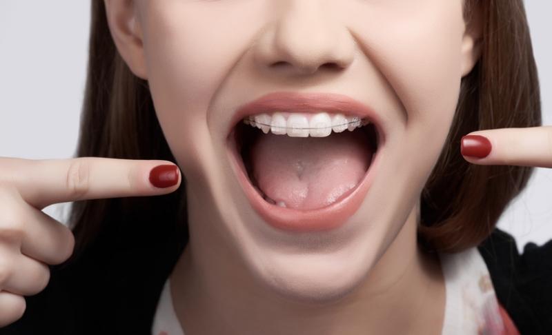 lingual braces vs translucent braces ridge meadows orthodontics