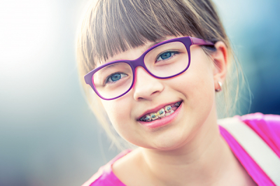 Back to Basics: Elastics For Your Braces