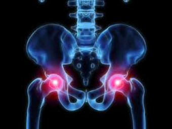 Hip Pain & Injuries