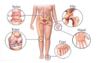 How Physiotherapy Can Help With Arthritis & Pain Relief