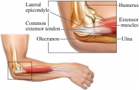 Fast Facts About Tennis Elbow (a.k.a lateral epicondylalgia)