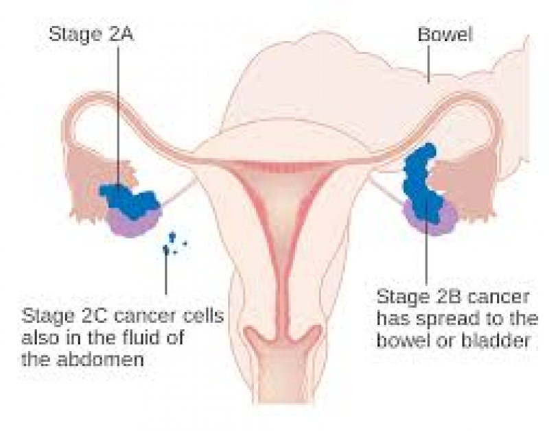 Ovarian,Cancer,Treatment,Role of Naturopathic Medicine ...