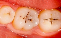 Tooth Decay - The
