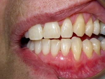 How to Keep Your Gums High and Avoid Dental Gum Recession