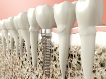 How Many Dental Implants Can I Get?