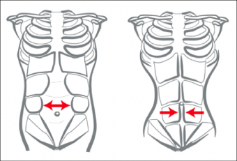 Diastasis Recti .... aka = Separated Abdominal Wall