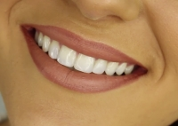 Tooth Whitening Options for a Brighter Smile
