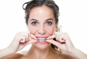 The Convenience of Removable Aligners