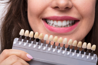 How can I tell if I should whiten my teeth?