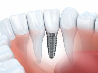 Do dental implants feel like natural teeth?