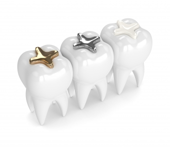 The History of Dental Fillings