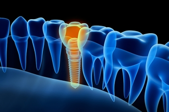 How long is the healing process for dental implants?