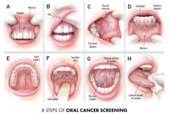 Dental Oral Cancer Examination in Maple Ridge