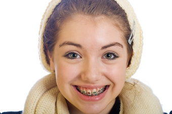 Types of Braces: Traditional Metal