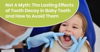 Not A Myth: The Lasting Effects of Tooth Decay in Baby Teeth and How to Avoid Them