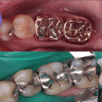 The 5 things you do not know about silver fillings (Amalgam Restorations)