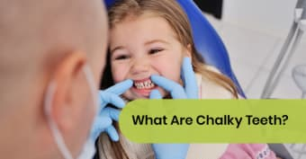 What Are Chalky Teeth?