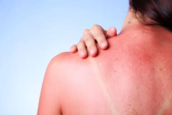 Can I get a massage if I have a sunburn?