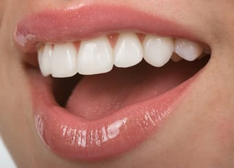How Cosmetic Dental Care Can Transform Your Smile