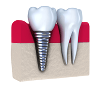 Dental Implants and Mini Implants