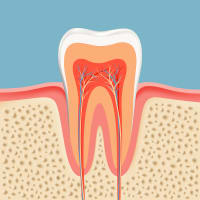 Root Canals Can Improve Your Smile