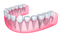 Reverse Your Tooth Loss With Dental Implants