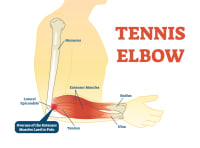 What is Tennis Elbow? And what can I do about it?