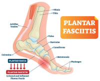 What is Plantar Fasciitis... and how do I get it?