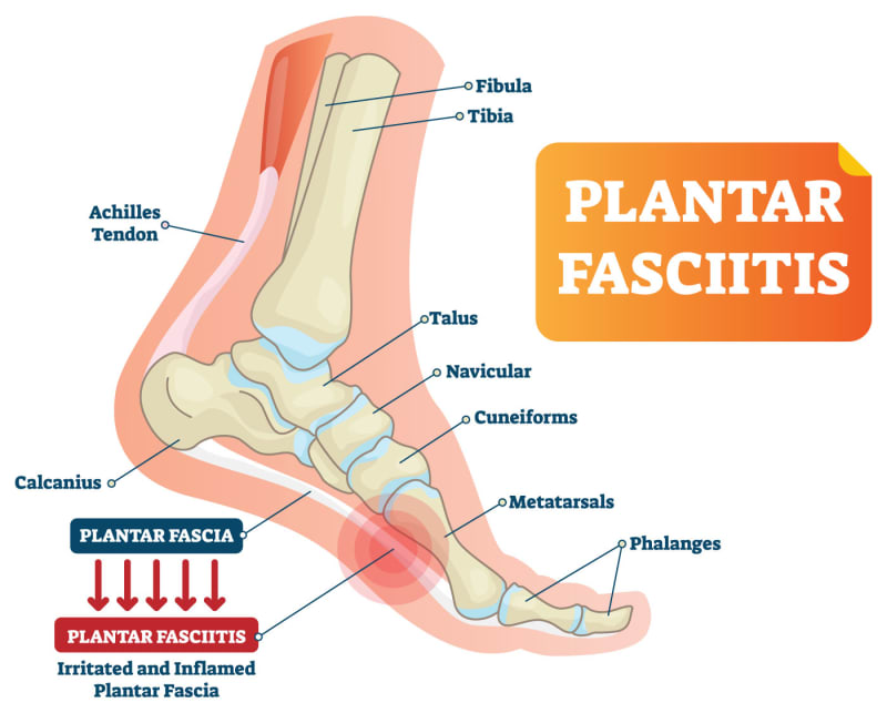 Plantar Fasciitis – What is it and how do you treat it ...