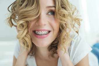 Say 'Cheese' - Look Great in Pictures while Wearing Braces