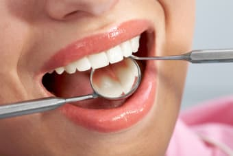 Composite Dental Fillings: What are they and when are they used?