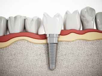 What are the parts of a dental implant?