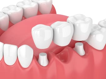 Dental Crowns & Bridges for Missing Teeth