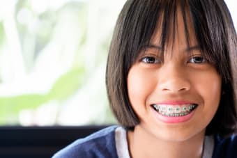 Life with Braces - What to Expect