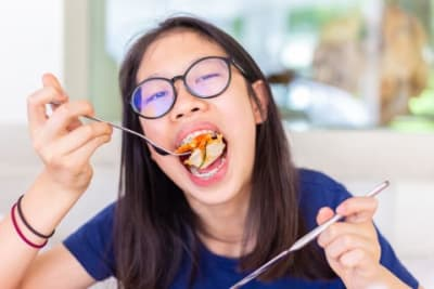 What You Can & Cannot Eat While Wearing Braces