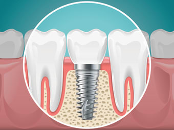 Parts of a Dental Implant Explained