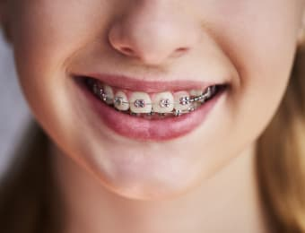 Is there more than one type of dental braces?