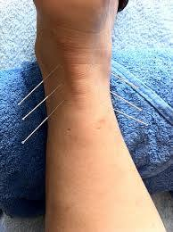 Acupuncture for Arthritis and Gout