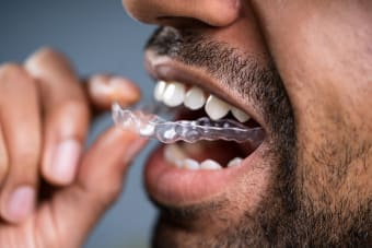 Does straightening your teeth with Invisalign hurt?