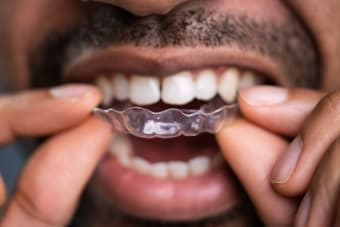 Is Invisalign a suitable orthodontic treatment option for adults?